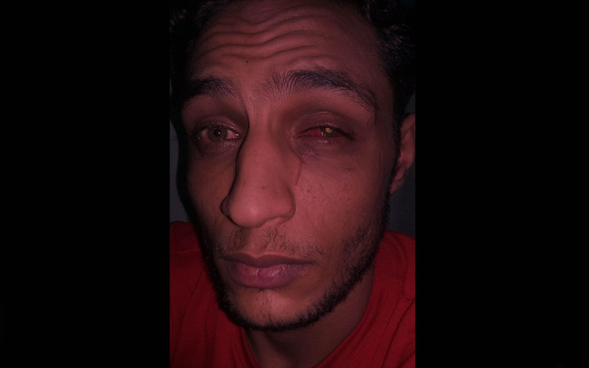 حكم مخفف بالحبس 6 أشهر ضد شرطي قام بتعذيب سجين مما أفقده البصر في إحدى عينيه